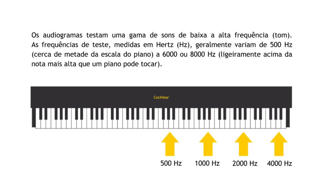 audiometría cochlear