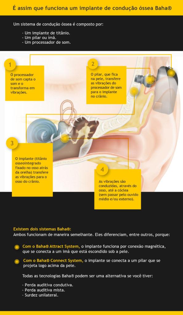 funcionamento de um implante de condução óssea