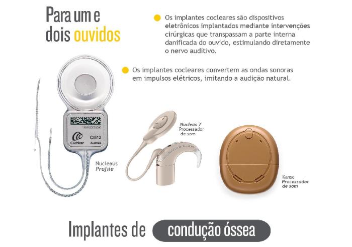 implantes conduccion ossea