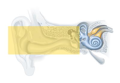 Tipos de tratamento para a perda auditiva 2