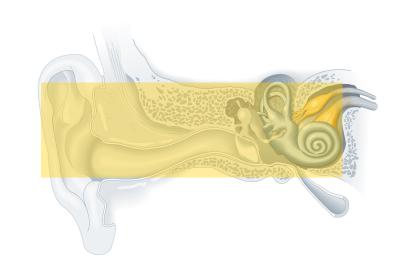 Tipos de tratamento para a perda auditiva 3